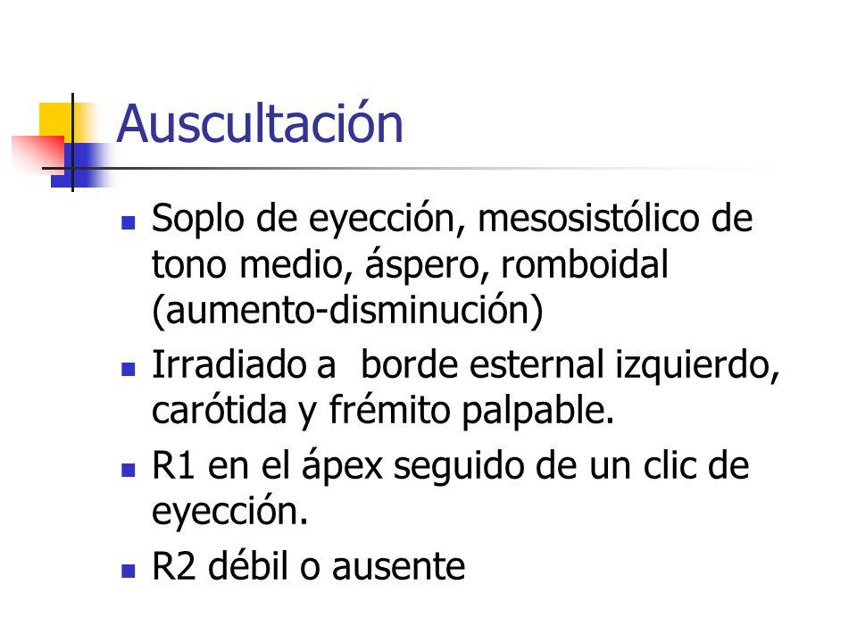 AuscultaciónSoplo de eyección, mesosistólico de tono medio, áspero, romboidal (aumento-disminución)