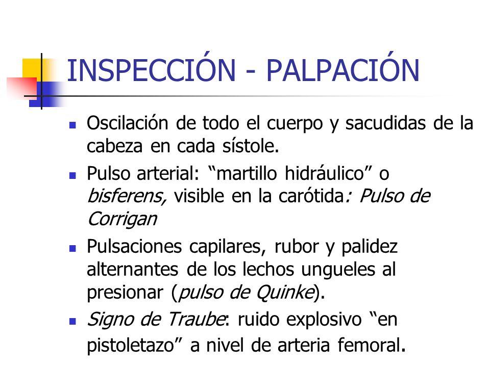 INSPECCIÓN - PALPACIÓN