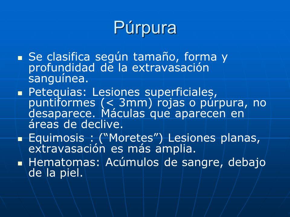 Púrpura Se clasifica según tamaño, forma y profundidad de la extravasación sanguínea.