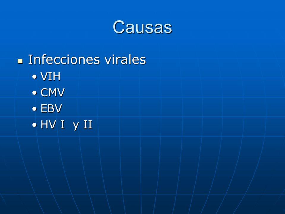 Causas Infecciones virales VIH CMV EBV HV I y II