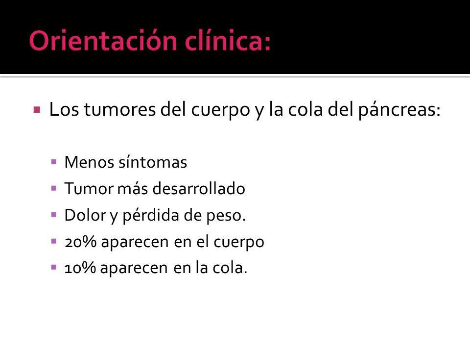 Orientación clínica: Los tumores del cuerpo y la cola del páncreas: