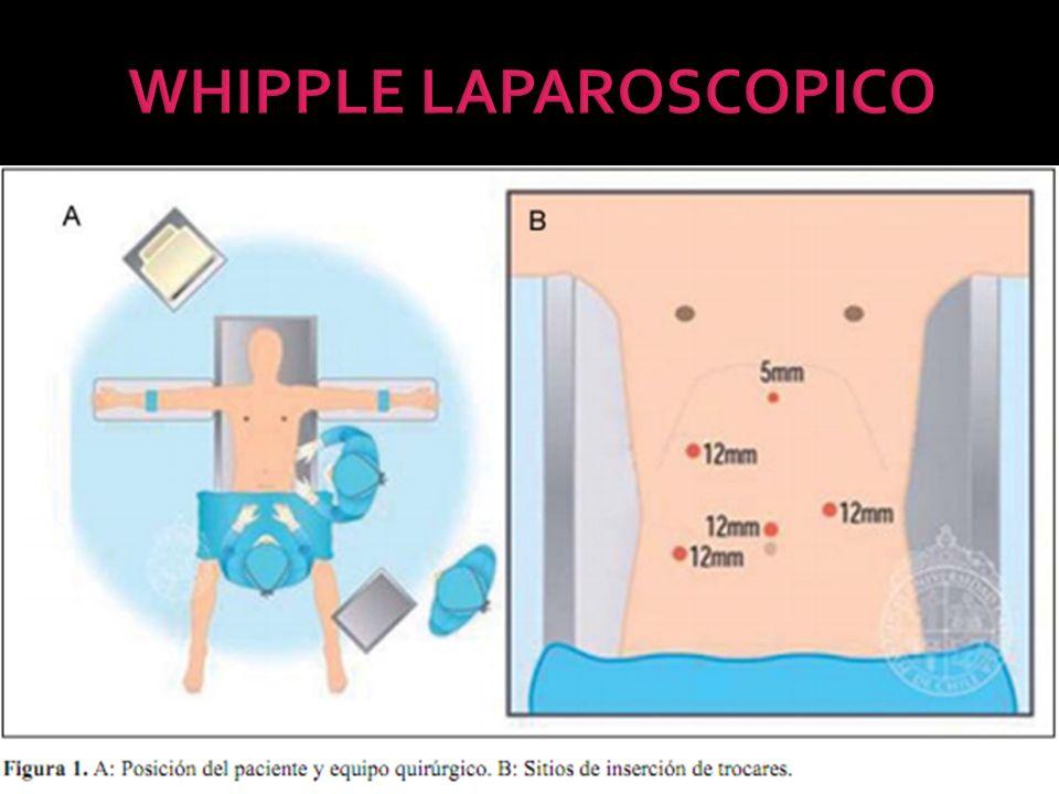 WHIPPLE LAPAROSCOPICO
