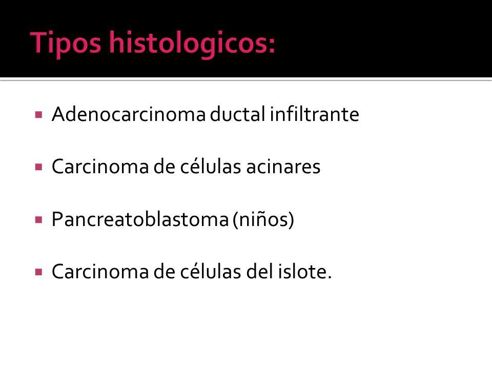Tipos histologicos: Adenocarcinoma ductal infiltrante