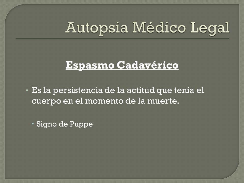 Autopsia Médico Legal Espasmo Cadavérico