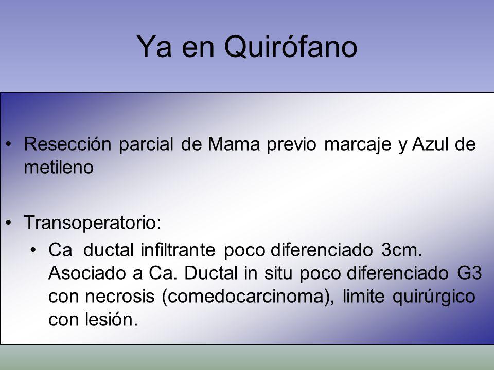 Ya en QuirófanoResección parcial de Mama previo marcaje y Azul de metileno. Transoperatorio: