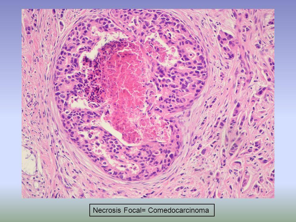 Necrosis Focal= Comedocarcinoma