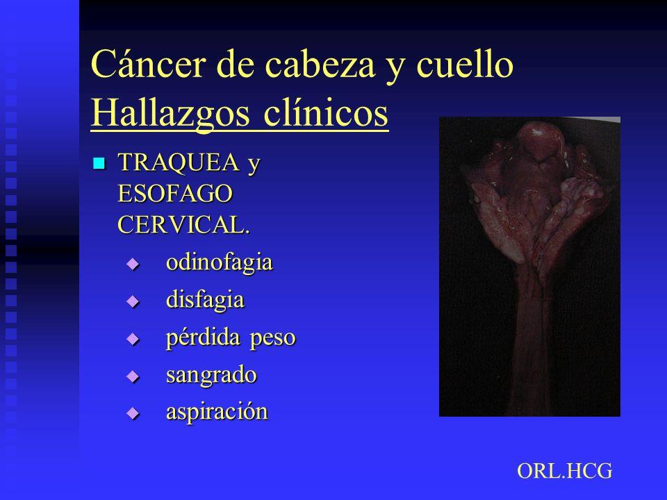 Cáncer de cabeza y cuello Hallazgos clínicos