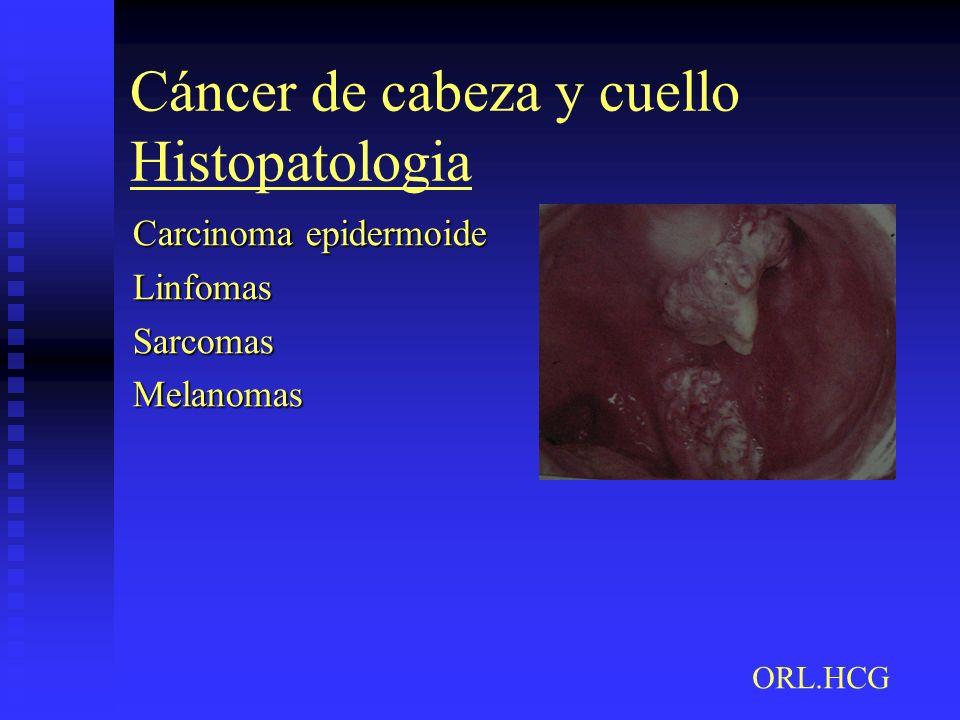 Cáncer de cabeza y cuello Histopatologia