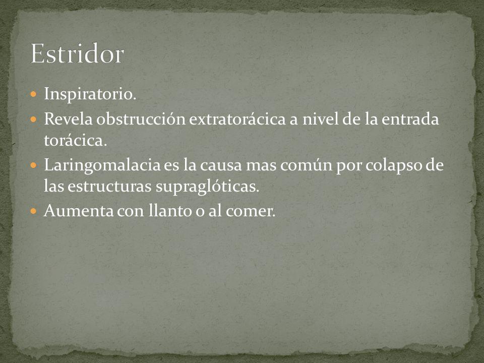 Estridor Inspiratorio.
