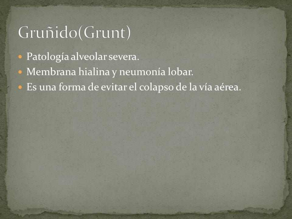 Gruñido(Grunt) Patología alveolar severa.