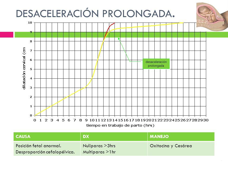 DESACELERACIÓN PROLONGADA.