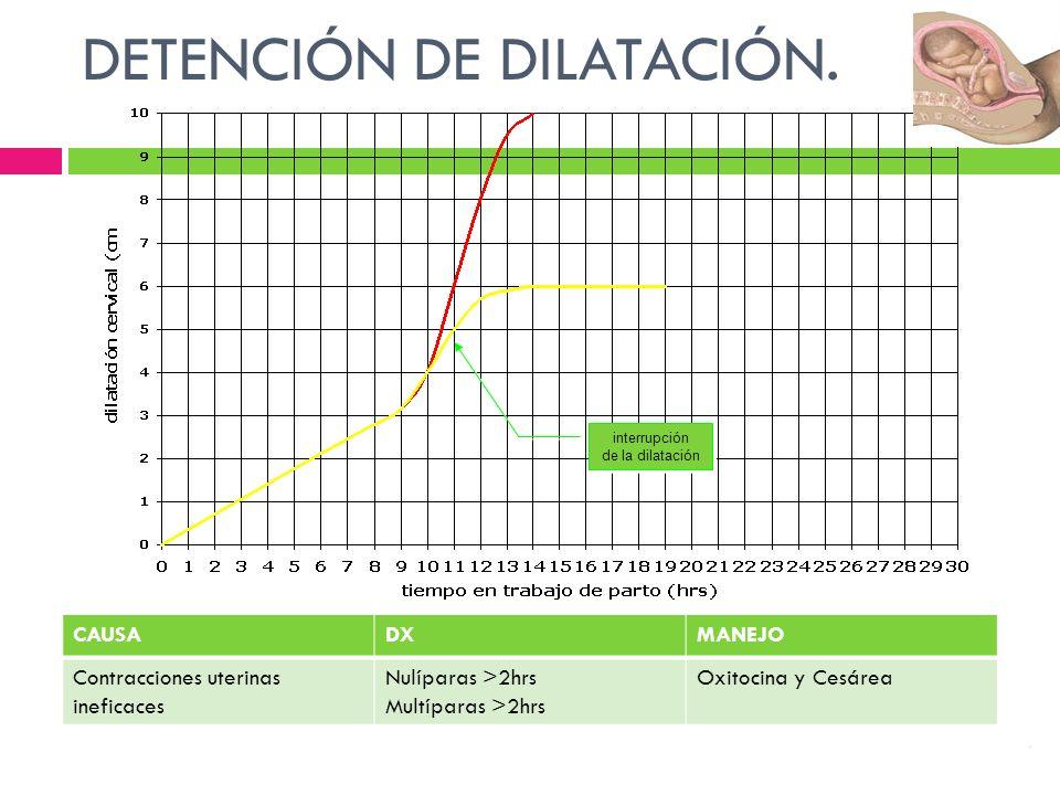 DETENCIÓN DE DILATACIÓN.