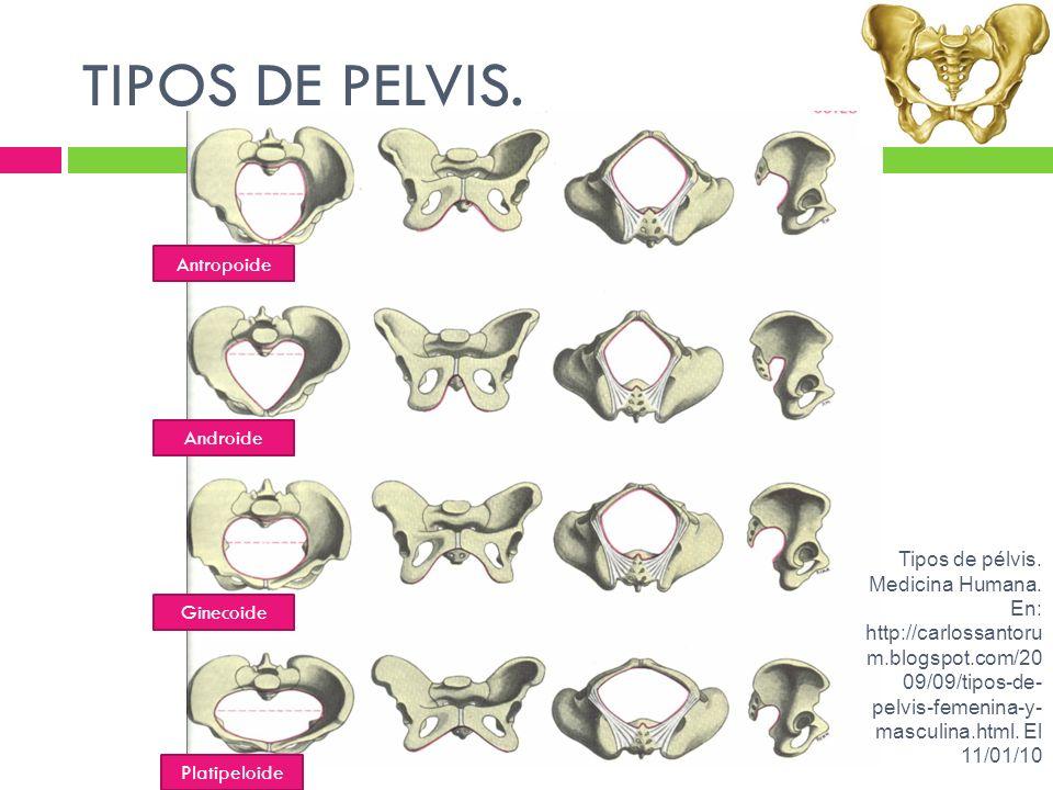 TIPOS DE PELVIS. Antropoide Androide