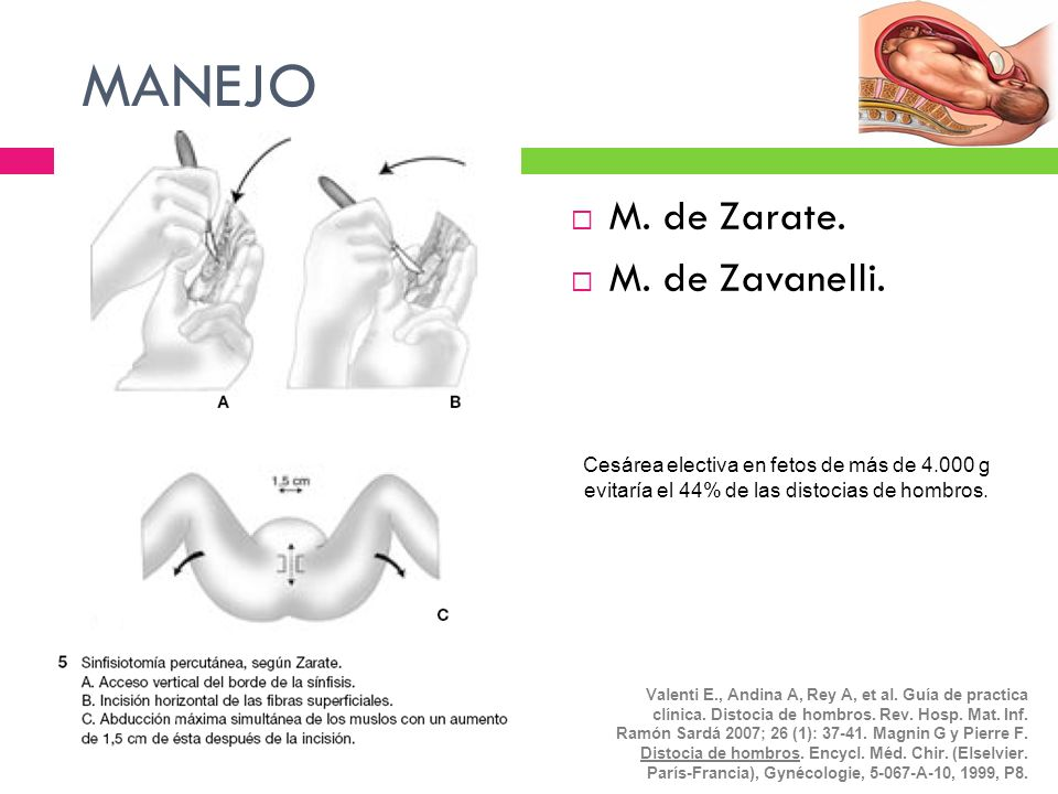MANEJO M. de Zarate. M. de Zavanelli.