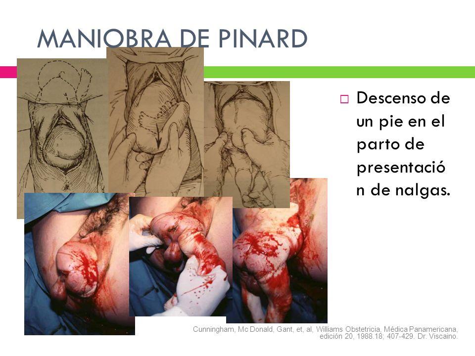 MANIOBRA DE PINARDDescenso de un pie en el parto de presentació n de nalgas.