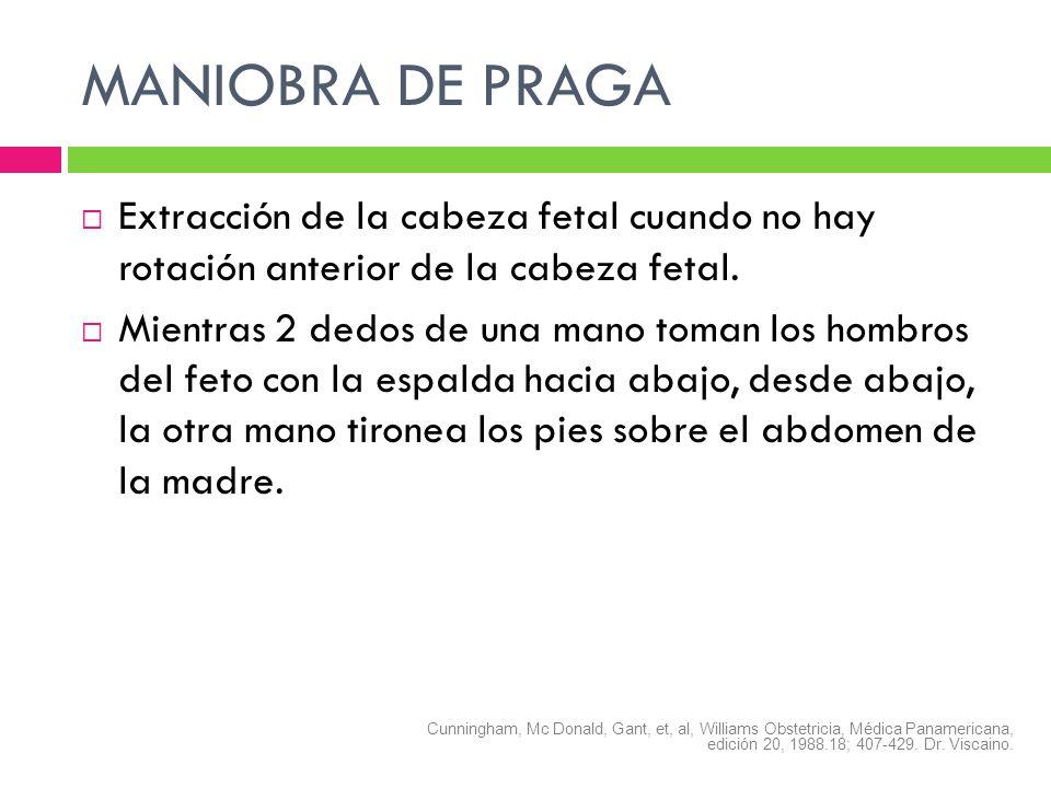 MANIOBRA DE PRAGAExtracción de la cabeza fetal cuando no hay rotación anterior de la cabeza fetal.
