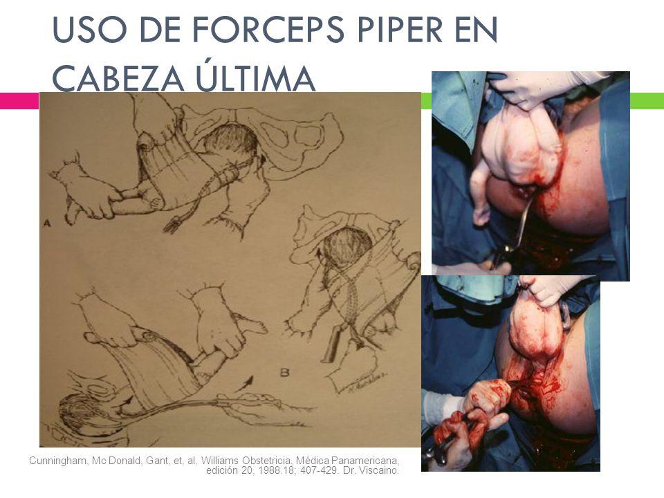 USO DE FORCEPS PIPER EN CABEZA ÚLTIMA