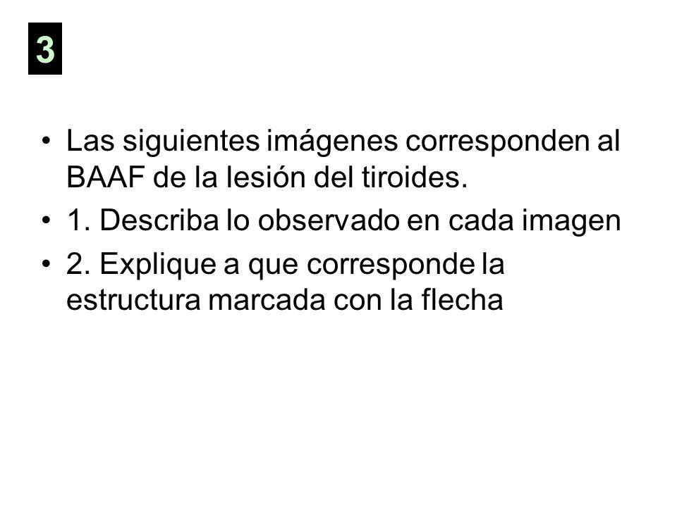 3 Las siguientes imágenes corresponden al BAAF de la lesión del tiroides. 1. Describa lo observado en cada imagen.