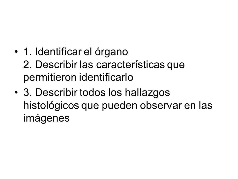 1. Identificar el órgano 2. Describir las características que permitieron identificarlo