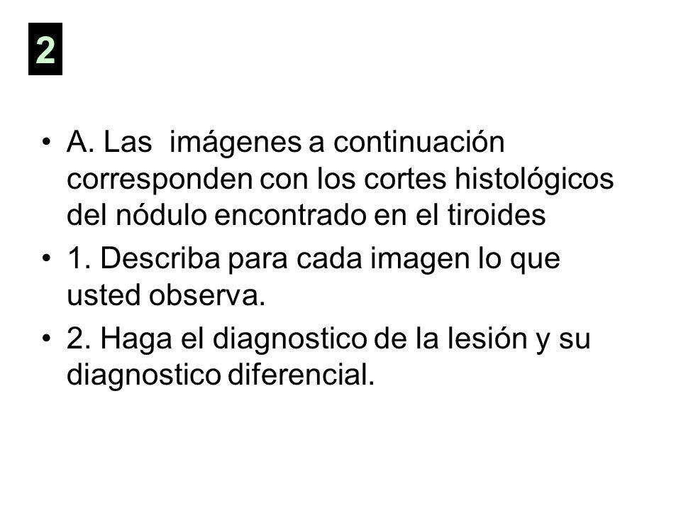 2A. Las imágenes a continuación corresponden con los cortes histológicos del nódulo encontrado en el tiroides.
