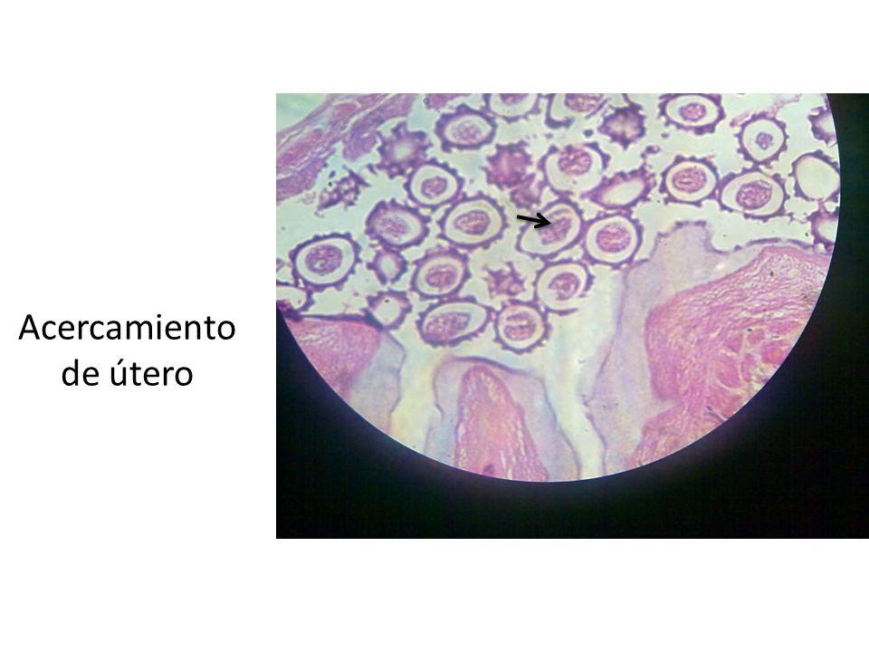 Acercamiento de útero Flecha negra: Se observan los huevecillos dentro del útero de la hembra.