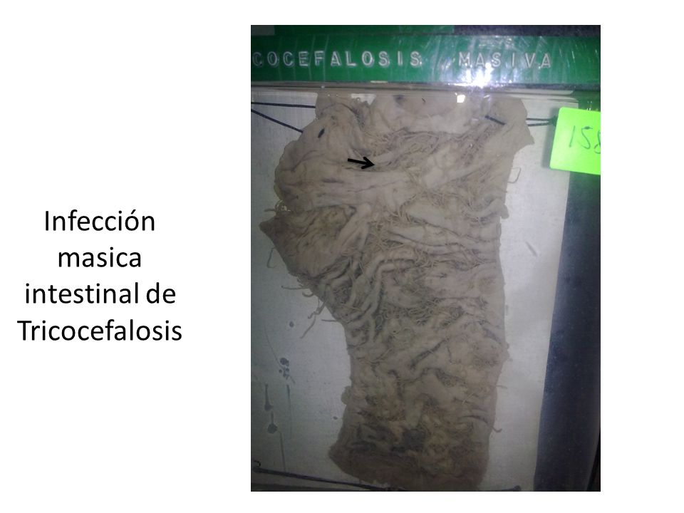 Infección masica intestinal de Tricocefalosis