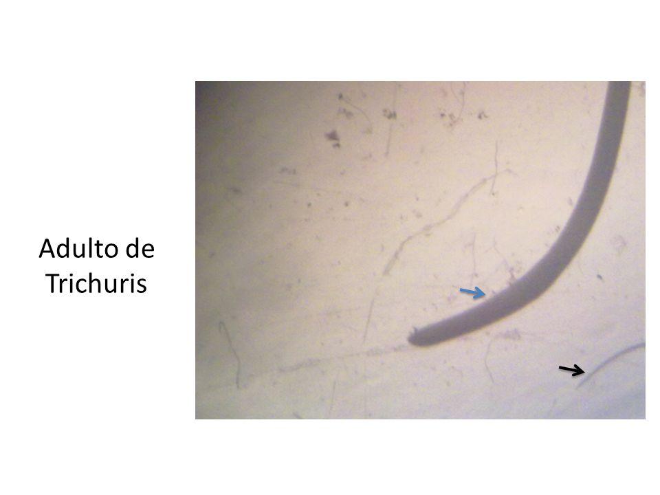 Adulto de Trichuris Flecha negra: Cabeza Flecha azul: cola