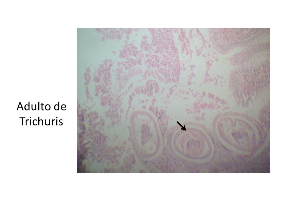 Adulto de Trichuris