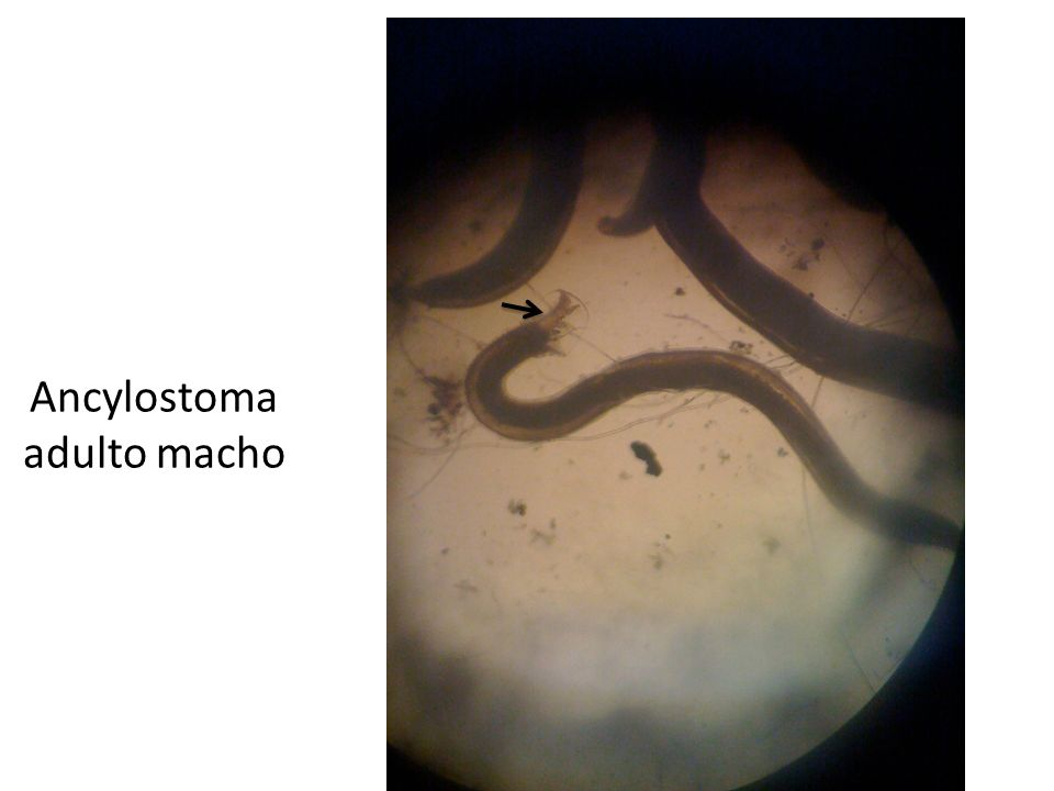 Ancylostoma adulto macho