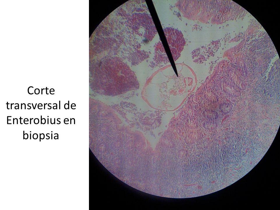Corte transversal de Enterobius en biopsia