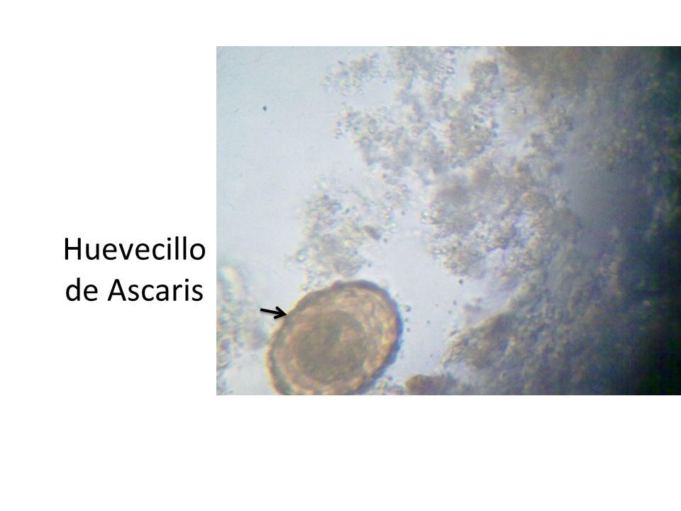 Huevecillo de Ascaris
