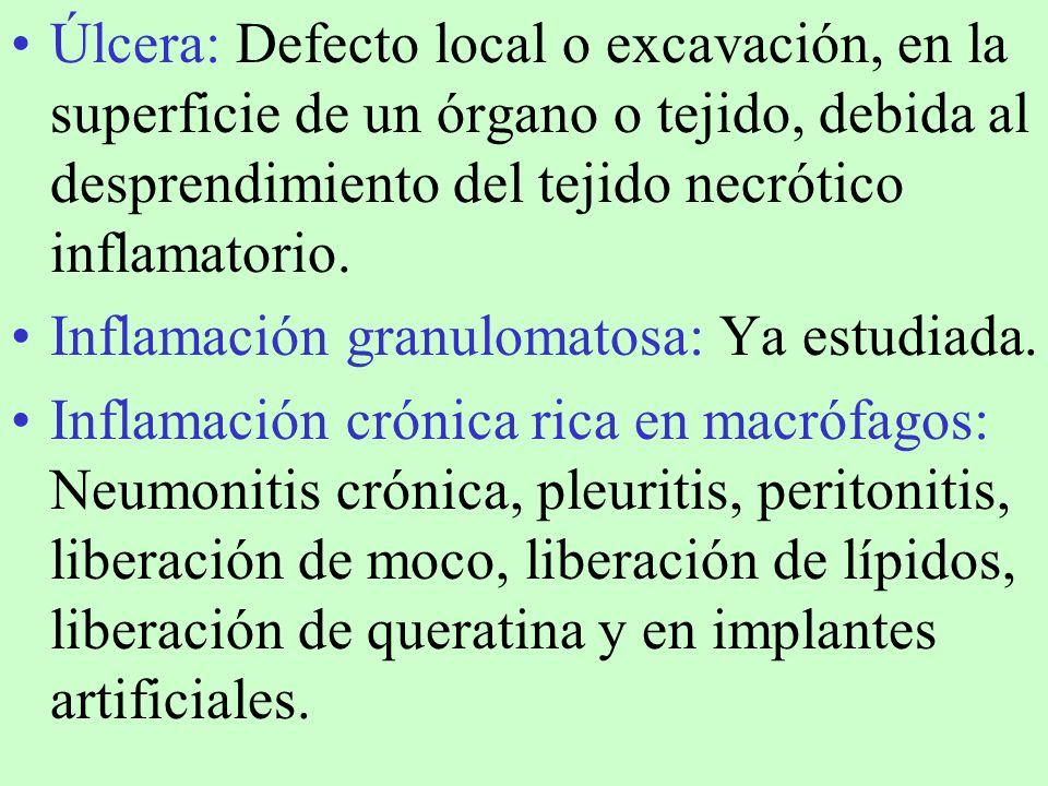 Úlcera: Defecto local o excavación, en la superficie de un órgano o tejido, debida al desprendimiento del tejido necrótico inflamatorio.