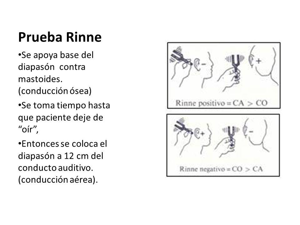 Prueba Rinne Se apoya base del diapasón contra mastoides. (conducción ósea) Se toma tiempo hasta que paciente deje de oír ,