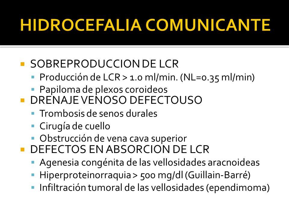 HIDROCEFALIA COMUNICANTE