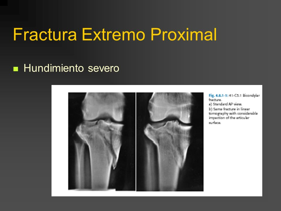 Fractura Extremo Proximal