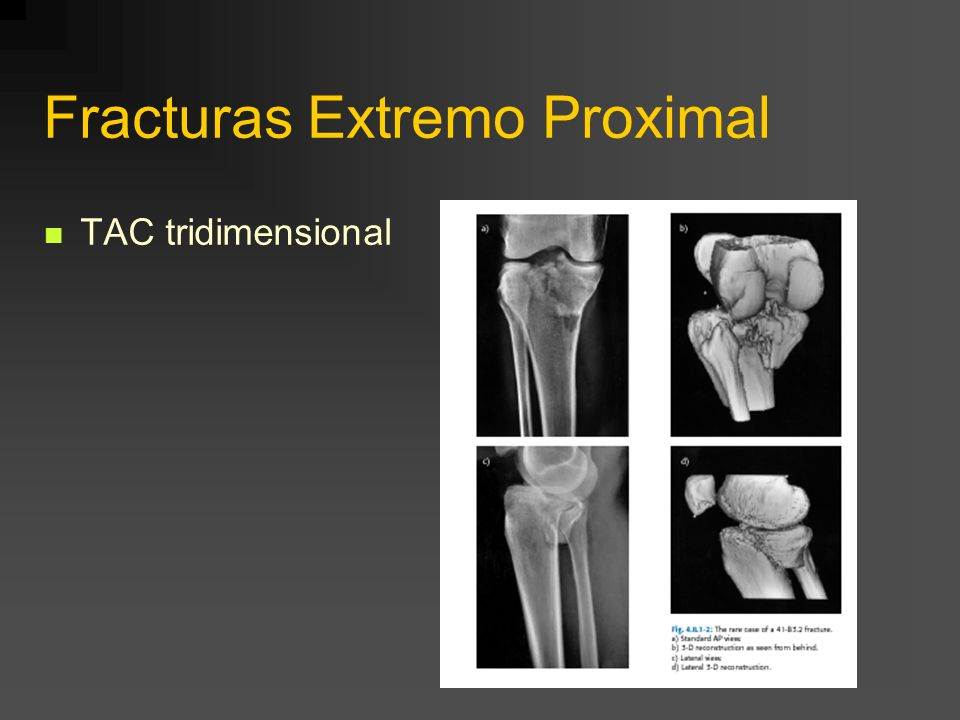 Fracturas Extremo Proximal