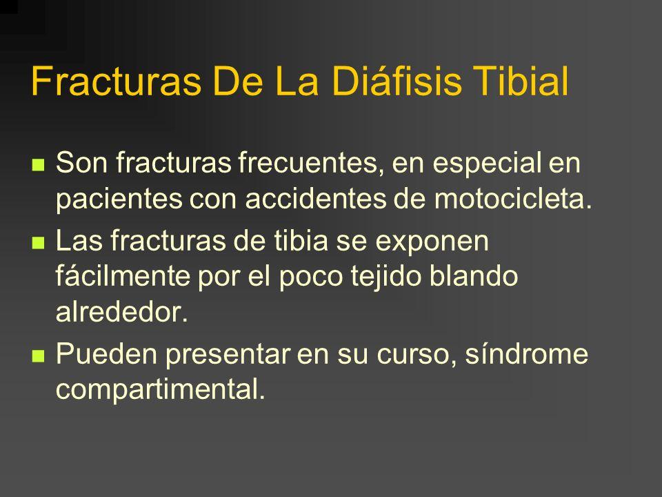Fracturas De La Diáfisis Tibial