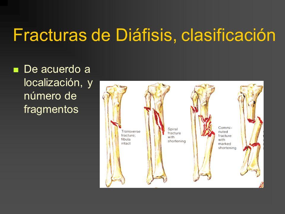 Fracturas de Diáfisis, clasificación