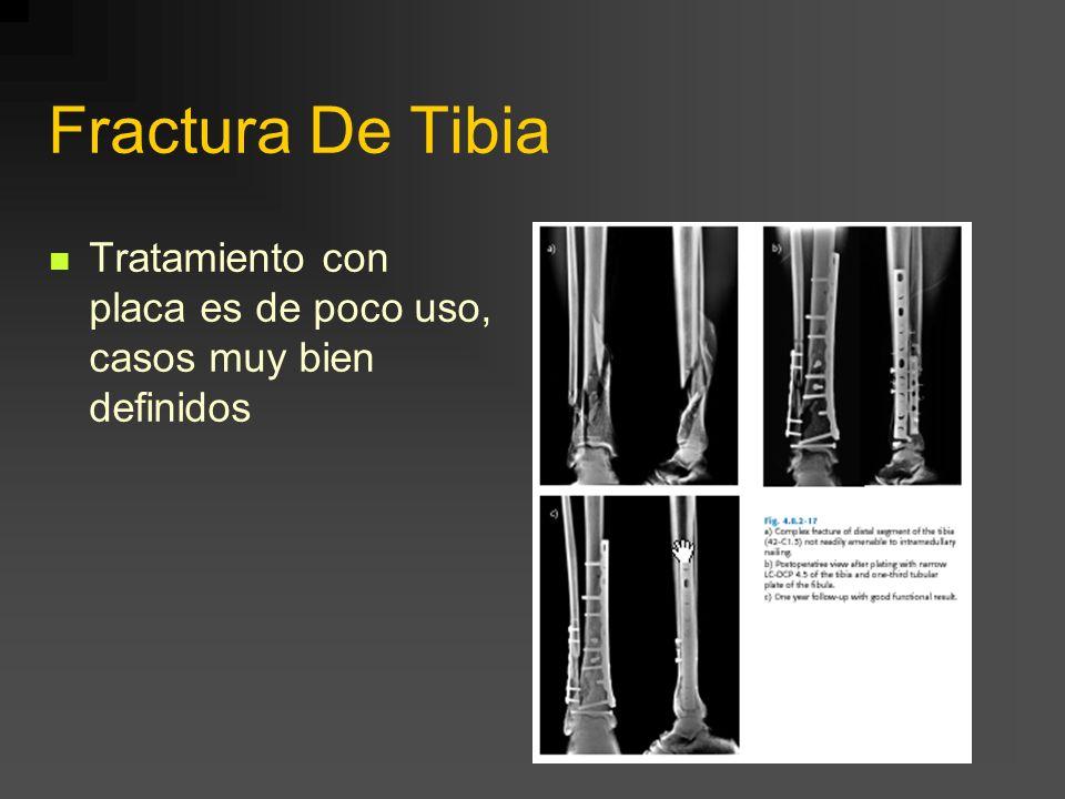 Fractura De Tibia Tratamiento con placa es de poco uso, casos muy bien definidos