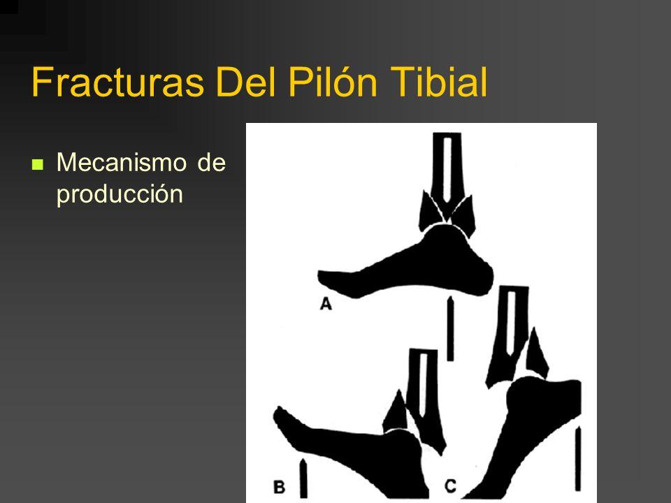 Fracturas Del Pilón Tibial