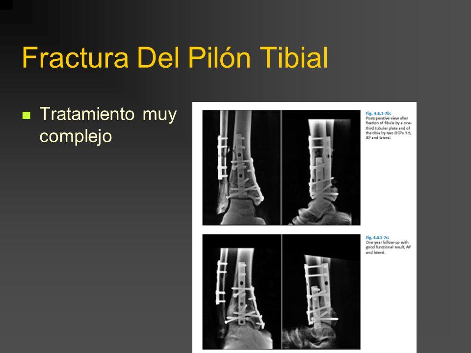 Fractura Del Pilón Tibial