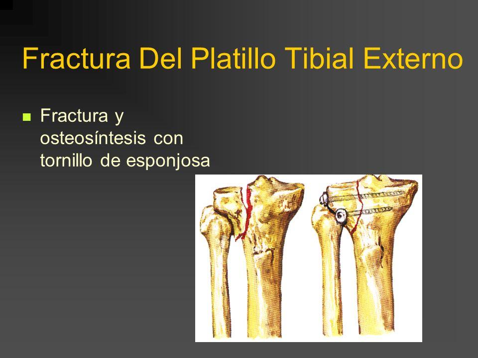 Fractura Del Platillo Tibial Externo