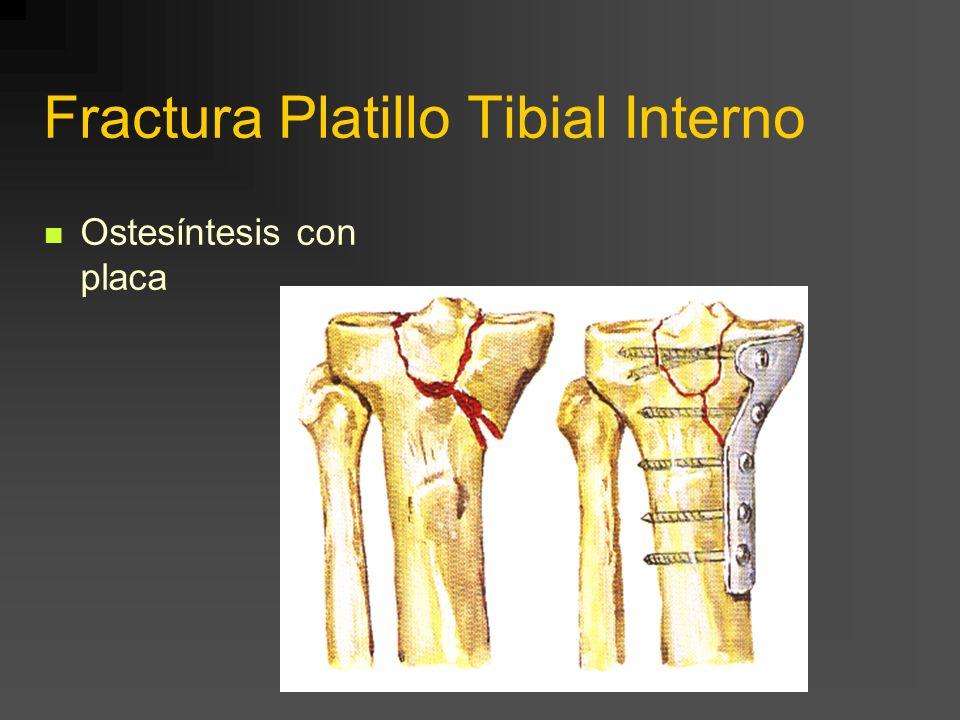 Fractura Platillo Tibial Interno