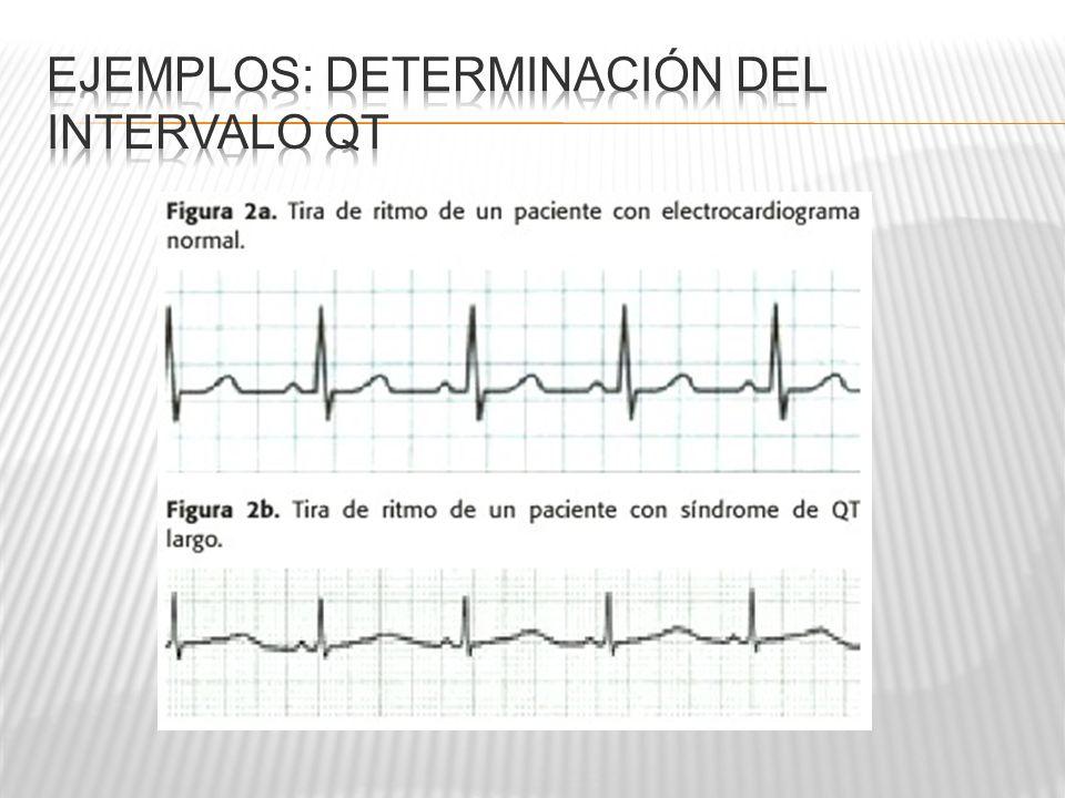 Ejemplos: Determinación del intervalo QT