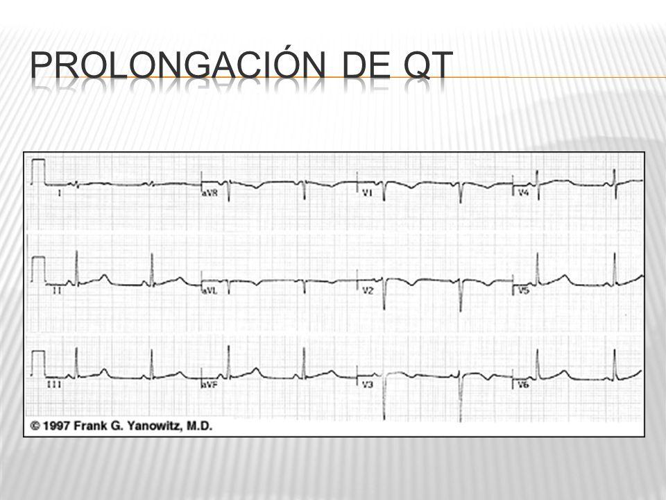 Prolongación de QT
