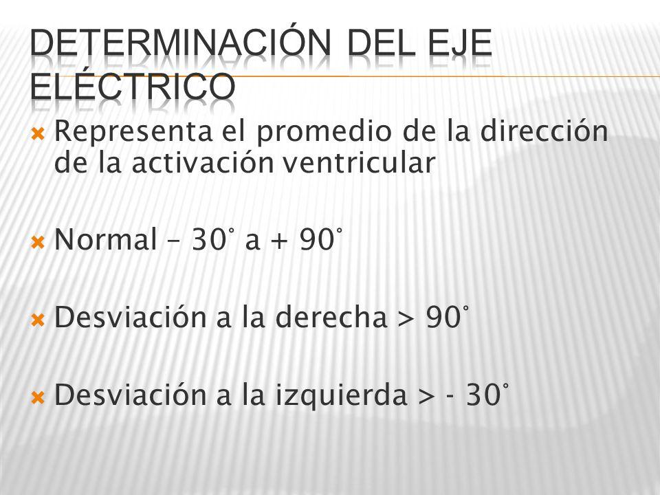 Determinación del eje eléctrico
