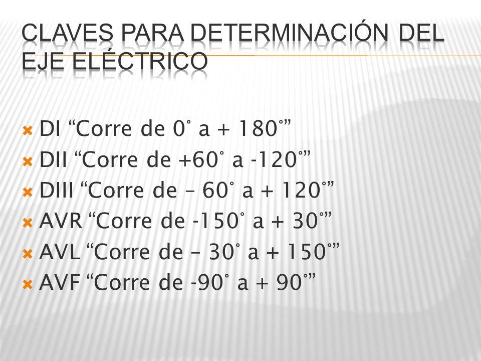 Claves para determinación del eje eléctrico