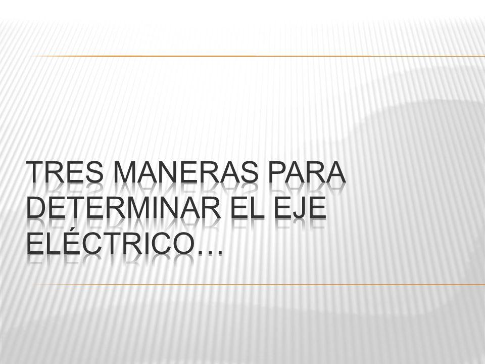 Tres maneras para determinar el eje eléctrico…