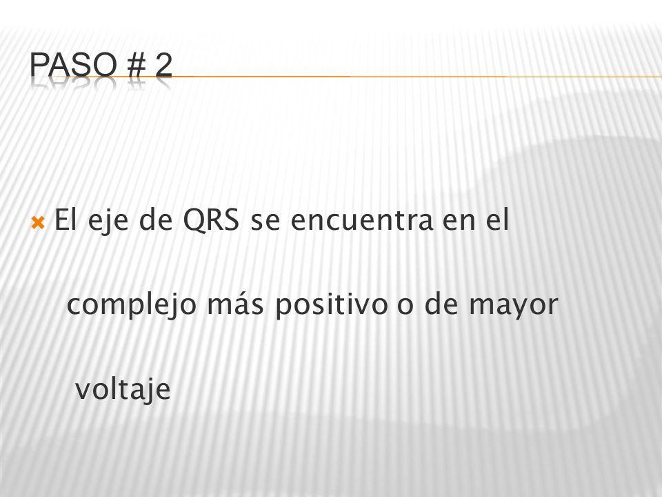 PASO # 2 El eje de QRS se encuentra en el
