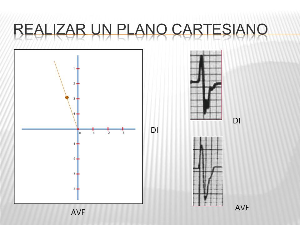 Realizar un plano cartesiano